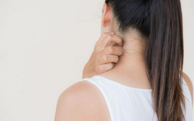 Best and Worst Foods for Preventing Eczema Flare-Ups