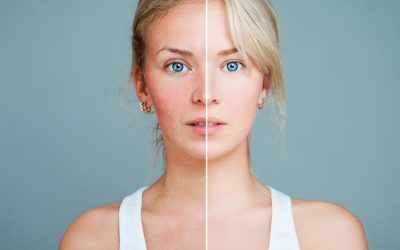 Don't Let Acne Scars Undermine Your Confidence: We Have Solutions