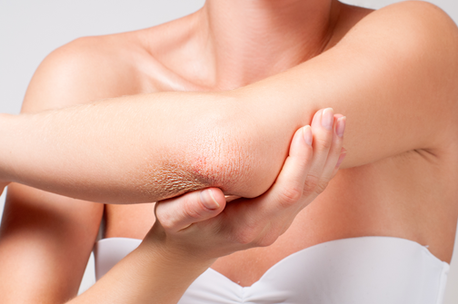 Summer Tips for Psoriasis Sufferers
